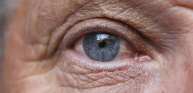antihistimines linked to increase in dementia risk