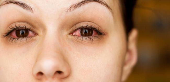 allergy sore eyes