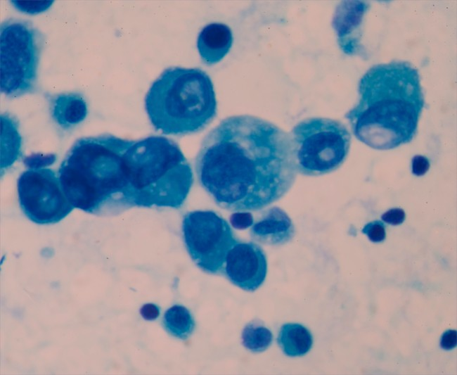 Cancer cells prostate