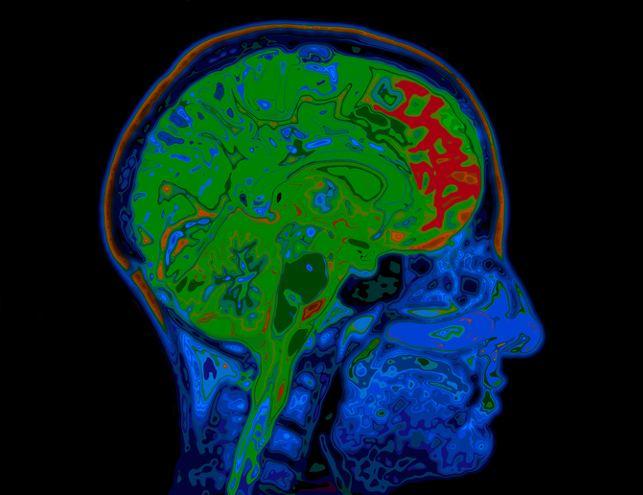 drugs repurposed to fight dementia