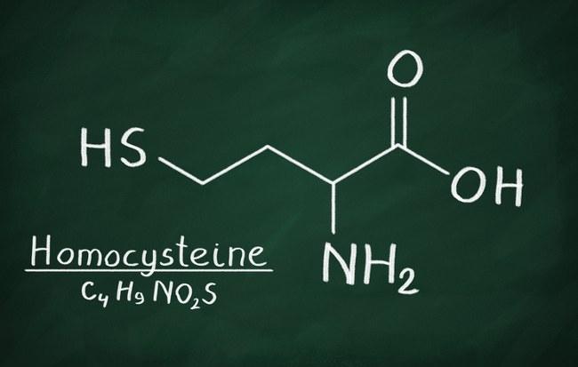 homocysteine and dementia risk
