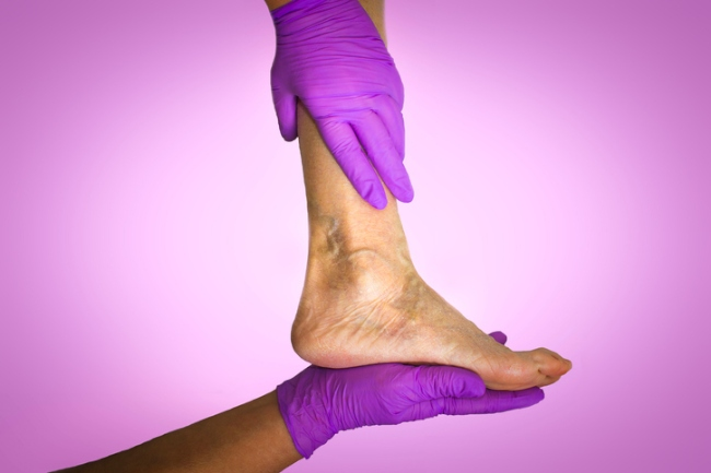 Ease the discomfort of varicose veins